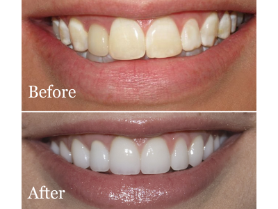 Before-After-Bleaching-400-x-300-PX