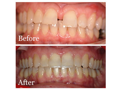 Before-After-Braces-400-x-300-PX