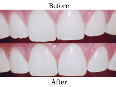 Before-and-After-Recontouring-400-x-300-PX