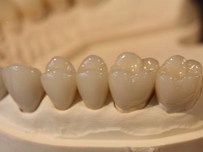 Ceramic-Crowns-400-x-300-PX