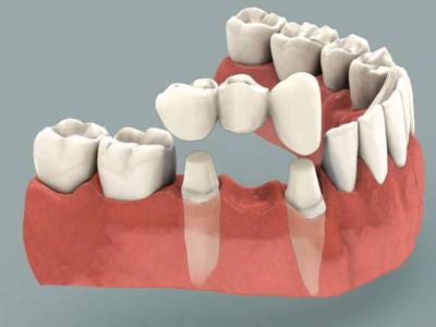 Dental-Bridges-400-x-300-PX