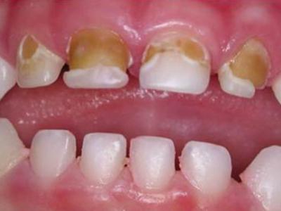 Dental-Caries-400-x-300-PX