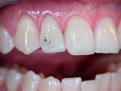 Dental-jwellery-400-x-300-PX