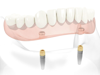 Implant-Supported-Removable-complete-dentures-400-x-300-PX