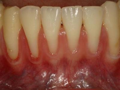Longer-looking-Teeth-400-x-300-PX