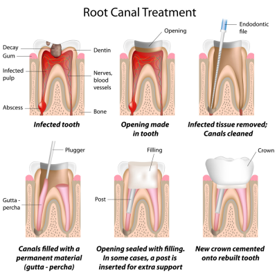 Root-Canal-Treatment-400-x-400-PX
