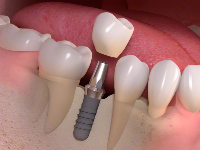 Single-Tooth-Implant-400-x-300-PX