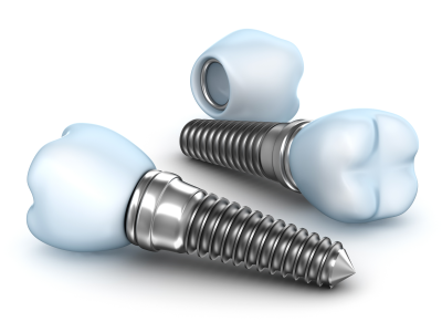 What-is-Dental-Implant-400-x-300-PX
