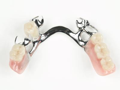 cast-partial-denture-400-x-300-PX