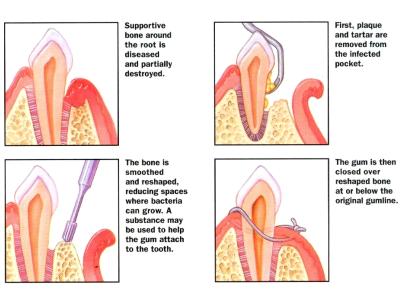 flap-surgery-400-x-300-PX