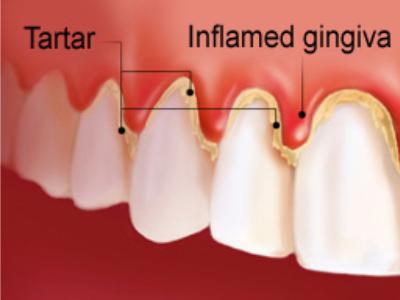 gingivitis-400-x-300-PX