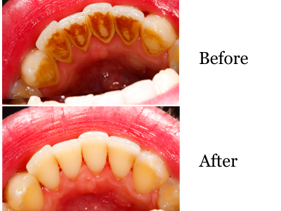 gum-infection-and-periodontitis-treatment-400-x-300-PX