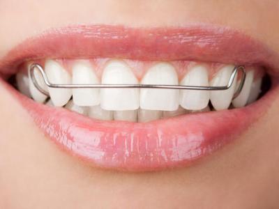 othodontic-retainer-photo-of-front-teeth-400-x-300-PX
