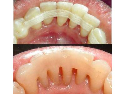 periodontoal-splints-400-x-300-PX